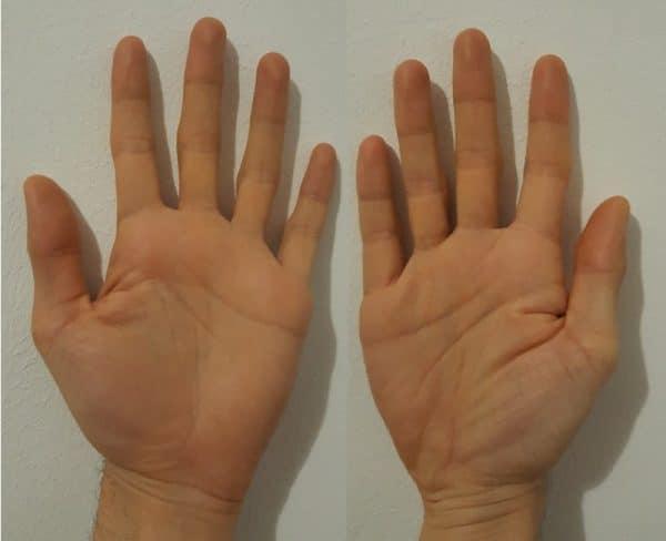 Ръцете на Радо Чакръкчията